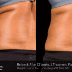 BA SculpSure B Katz Post 1Tx 12WKs 04