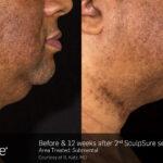 BA Closeup SculpSure B.Katz Submental 2tx 12weeks 057