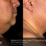 BA Closeup SculpSure L.Bass Submental 2tx 12weeks 016