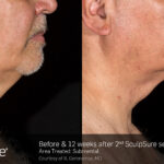 BA Closeup SculpSure R.Geronemus Submental 2tx 12weeks 097