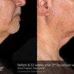 BA Closeup SculpSure R.Geronemus Submental 2tx 12weeks 097
