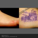PicoSure – Before & After – C Vanderheiden Post 5Tx