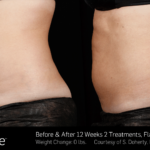 BA SculpSure 11-15 SBS noline 13