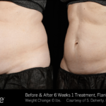 BA SculpSure 11-15 SBS noline 14