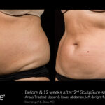 BA SculpSure L.Bass Core 12wks 2 Tx 01 17