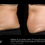 BA SculpSure L.Bass Core 12wks 2 Tx 01 17.2