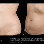 BA SculpSure L.Bass Core 12wks 2 Tx 04