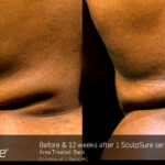 BA SculpSure S.Doherty Back 1tx 12weeks 03 06