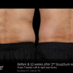 BA SculpSure S.Doherty Flanks 2tx 12wks 01-16