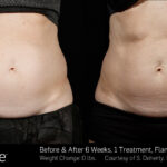 BA SculpSure SBS Doherty, 1TX 6Wks 2