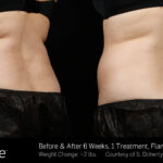 BA SculpSure SBS Doherty, 1TX 6Wks 3