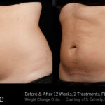 BA SculpSure SBS Doherty 2TX 12WKs 2