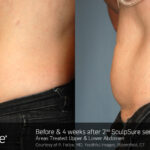 BA Sculpsure PFelice 4Weeks 2Tx 2nd shot