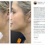 Bianca Dye Instagram