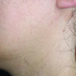 Hair Removal Post