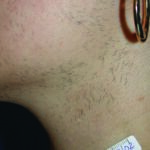 Hair Removal Pre
