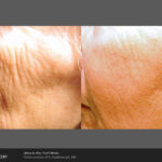Icon 2940 D Scarborough wrinkle prepost8Tx