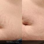 Icon S Doherty stretchmark2 stomach prepost3Tx