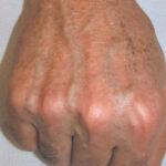 Skin Rejuv and Pigmentation Post