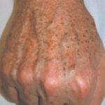 Skin Rejuv and Pigmentation Pre