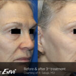 TempSure Envi Before and After Image