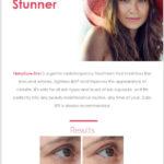 TempSure-Envi Summer Promotion Eblast HTML