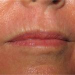 Wrinkle Treatment Post