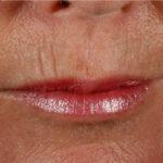 Wrinkle Treatment Pre