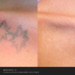 BA PicoSure SkinpossibleLaserLight Post1Tx 3stars1