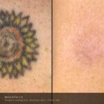 BA PicoSure Cynosure Post3Tx Sun