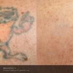 BA PicoSure Cynosure Post3Tx Taz