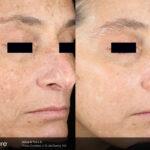 BA Picosure Wrinkle DMcDaniel Post4Tx