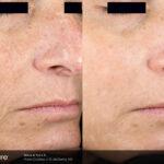 BA Picosure Wrinkle DMcDaniel Post4Tx B