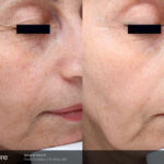 BA Picosure Wrinkle RWeiss Post4Tx 1