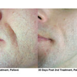 4-Pelleve Before _ After Treatment Photos (image 3)