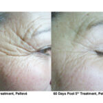 5-Pelleve Before _ After Treatment Photos (image 5)