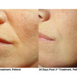 7-Pelleve Before _ After Treatment Photos (image 6)