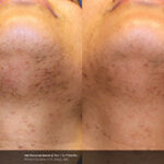 BA_Elite_R_Saluja_HairRemoval_Pre_Post1Tx_01_tn