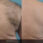 BA_Vectus_S_Doherty_Post 1tx_hairreduction_Tn