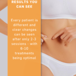ZWave Results you can see